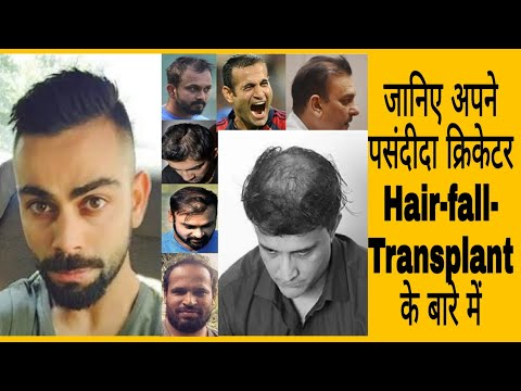 Top 10 Indian Cricket Celebrity Hair Transplant