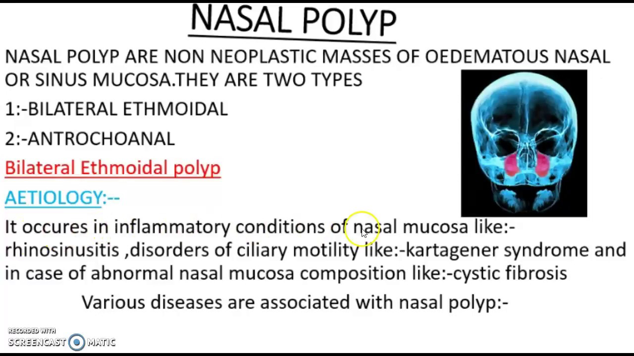 Nasal Polyp Bilateral Ethmoidal Polyp S P Medical College Youtube