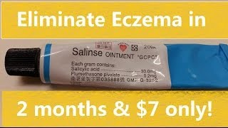 ECZEMA CURE $7! Why can't my LA Doctors prescribe this? Thumbnail