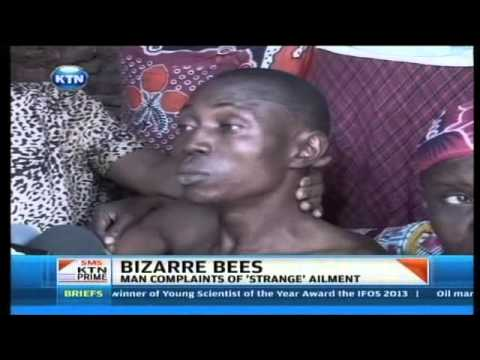 Bizarre bees attack man in Mombasa