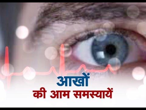 Swasth Kisan - Eyes special - आखों की आम समस्यायें Promo