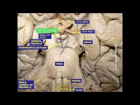 Brain Stem - Ventral View - YouTube