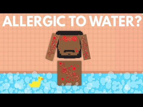 What Would Happen If You Were Allergic To Water?