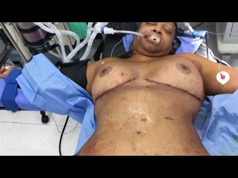 No vertical scar breast lift and Liposuction with fat transfer to hips