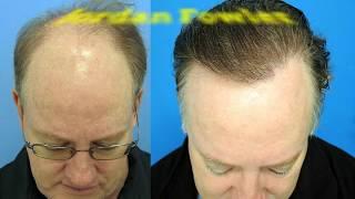 Calvitie et perte de cheveux : les remèdes et solutions naturelles