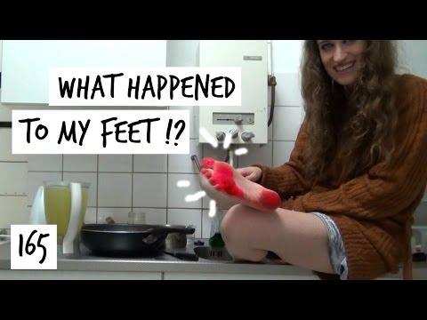 My Feet Turned Red! & I Have the Sweetest Viewers | Vlog 165 | HiLesley-Ann