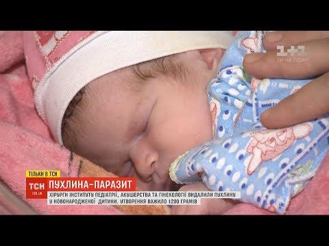 Українські хірурги видалили