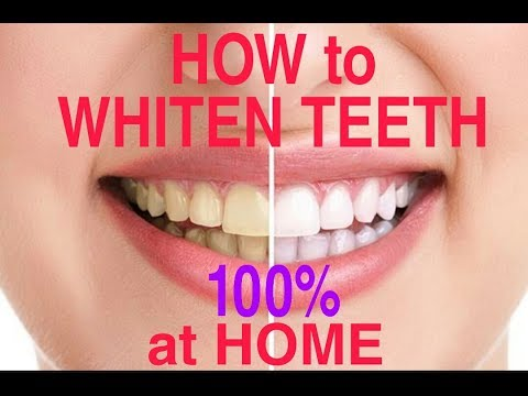 How To Whiten Teeth at Home in 2 Minutes / 100% Works!!