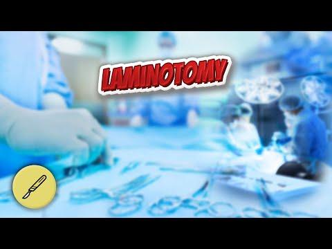 Laminotomy - Everything Surgeries ✅😬⁉️