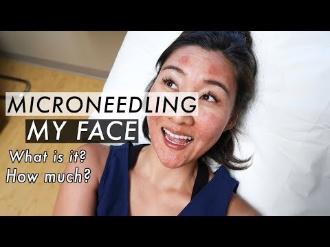 Microneedling Treatment Before and After | Acne Scar Removal