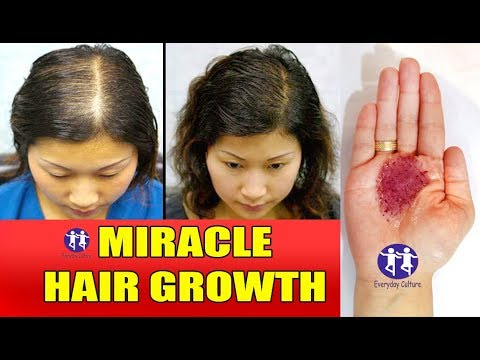 Over night hair Growth secret DOUBLE HAIR GROWTH IN A WEEK  MIRACLE HAIR GROWTH REMEDY TO GET LONG H