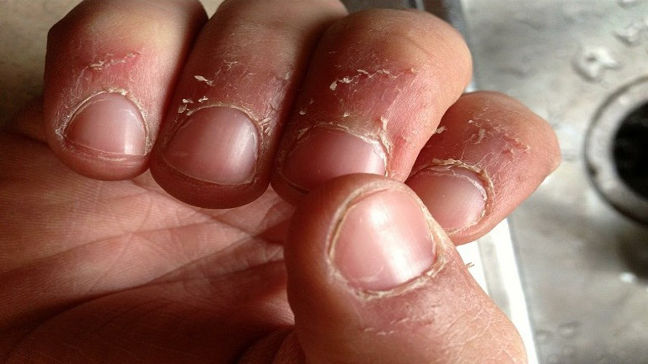 Home remedies for hangnails - YouTube