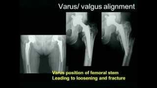 Biomechanics of the Hip Joint