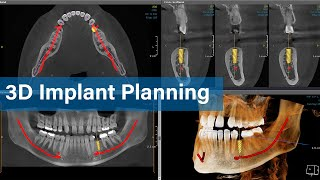 Digital Implant Planning - HDX WILL E-Learning Series 2nd Session