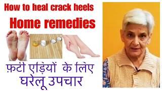How to heal crack heels,home remedies to cure crack heel, फ़टी एड़ियों को ठीक करने  का घरेलू नुस्खा