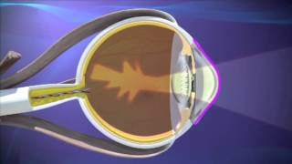Wohl Eye Center - Understanding Astigmatism