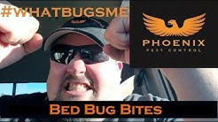Bed Bug Bites #whatbugsme Phoenix Pest Control TN