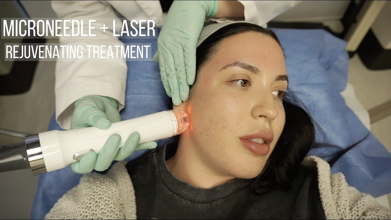 Micro-Needling and Laser Facial Vlog | Viva & Vivace Treatment | Solange  Nicole