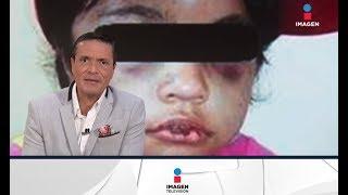 Una llamada al 911 salvó la vida de esta niña   Noticias con Francisco Zea