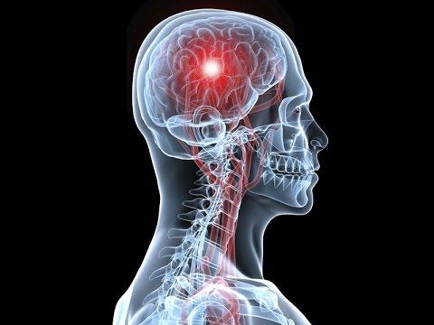 Активация шишковидной железы Hqdefault