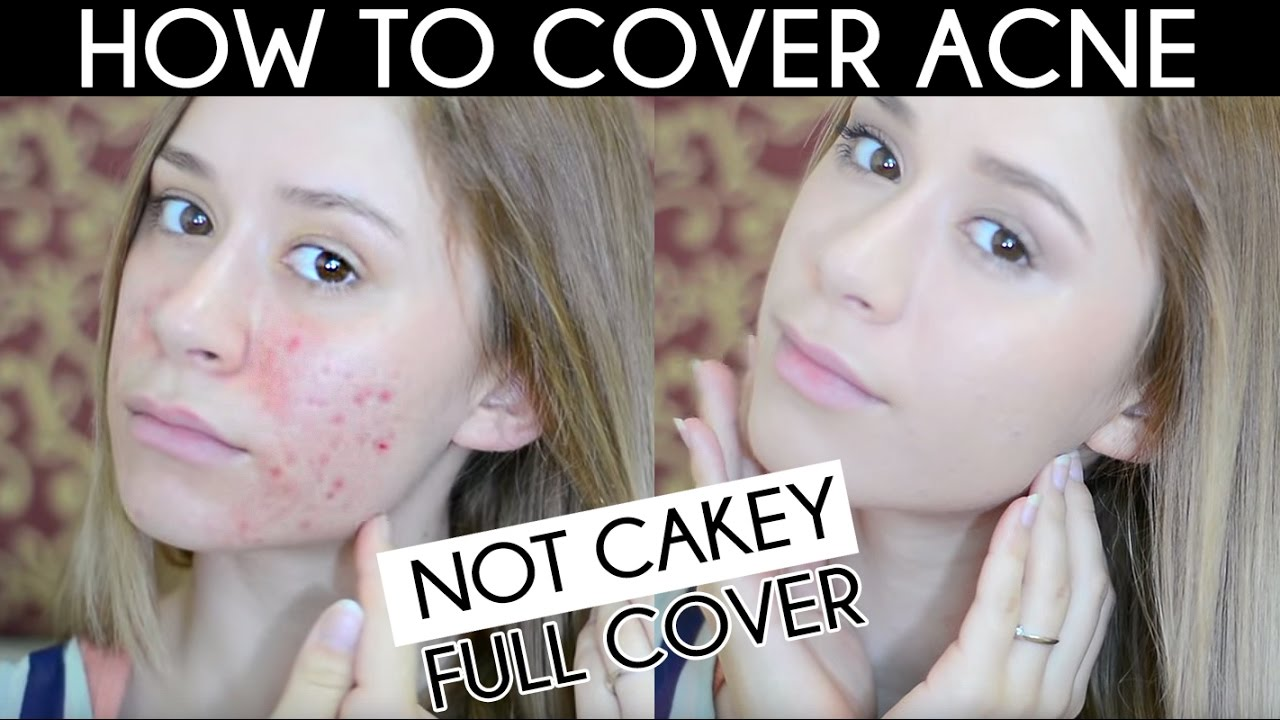 Not Cakey Acne Coverage