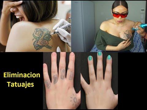 Eliminación De Tatuajes Mira Resultados De Los Mismo Precios Y