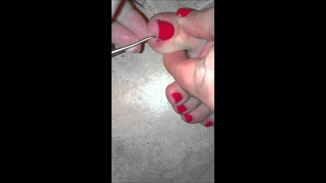 How to remove an ingrown toenail - YouTube