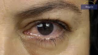 TRIBUN-VIDEO.COM - Amaurosis fugax adalah keadaan di mana seseorang tidak dapat melihat dengan baik .