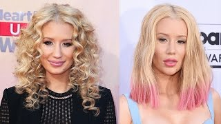 Iggy Azalea Got a Nose Job & Chin Implants?