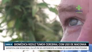 Biomédica reduz tumor cerebral com uso de maconha