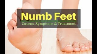 Numb Feet: Causes, Symptoms and Treatment - by Doc Willie Ong