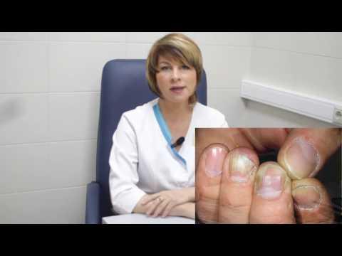 Грибок ногтей - Как правильно лечить грибок ногтей на