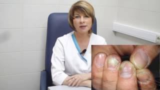 Онихомикоз. Грибок ногтей лечение. дельта клиник(Онихомикоз -- грибковое поражение ногтей стоп (кистей). Заболевание широко распространено во всех странах..., 2012-10-17T09:34:07.000Z)