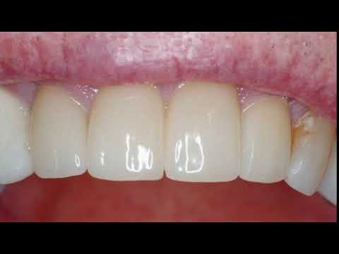 Dental Transformation in Oviedo, Florida