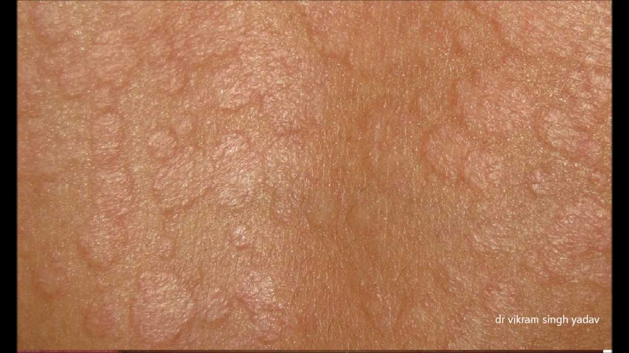 Tinea Versicolor Treatment and Home Remedies