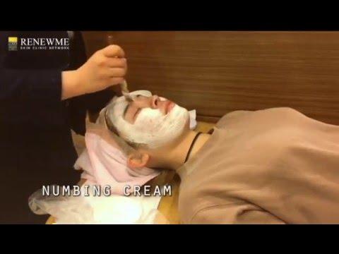 Acne Scar Treatments in Renewme Skin Clinic