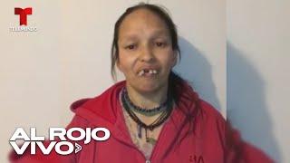 Una mujer recibe una transformación radical de su sonrisa en Colombia