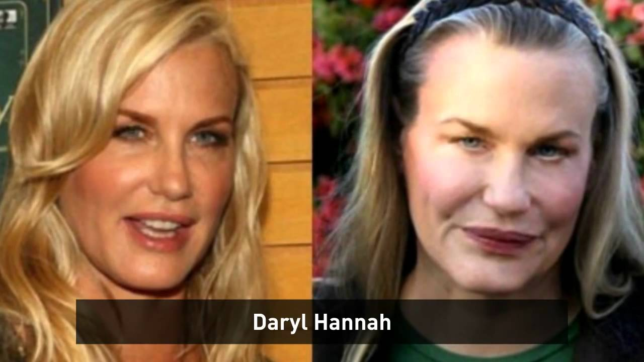celebrity plastic surgery disasters - youtube