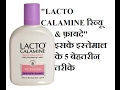 Lacto Calamine Skin Care Lotion Review / Top 5 uses of Lacto Calamine