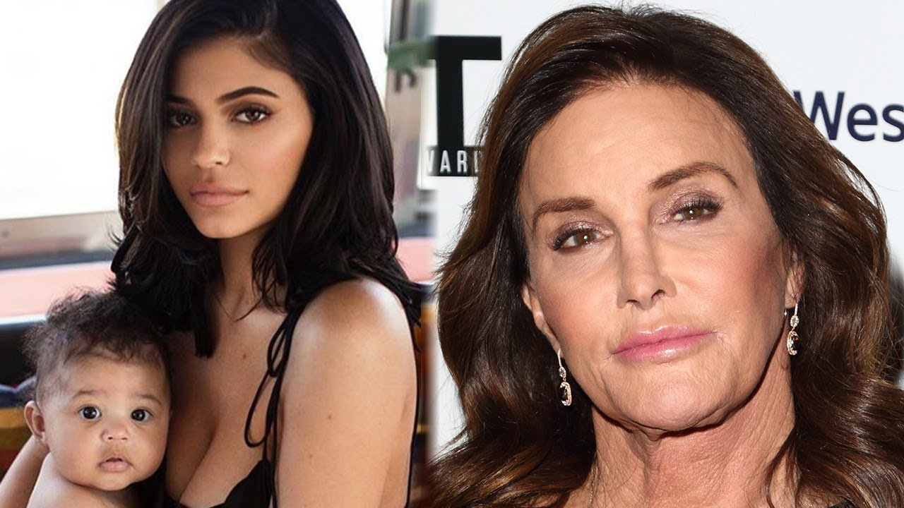 Kylie Jenner Opens Up About the Real Reason She Got LipInjections images