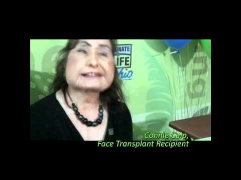 face transplant patient connie culp update doovi