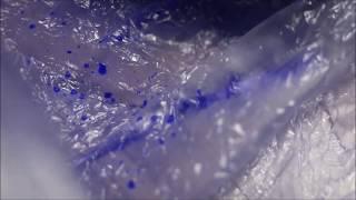Diagnoza Exitus - Tsunami (unplugged) lyrics video