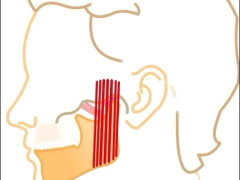 Therapie der Kiefergelenkluxation