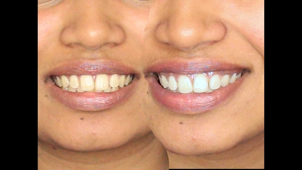 How To Whiten Teeth Diy Turmeric And Coconut Oil Youtube