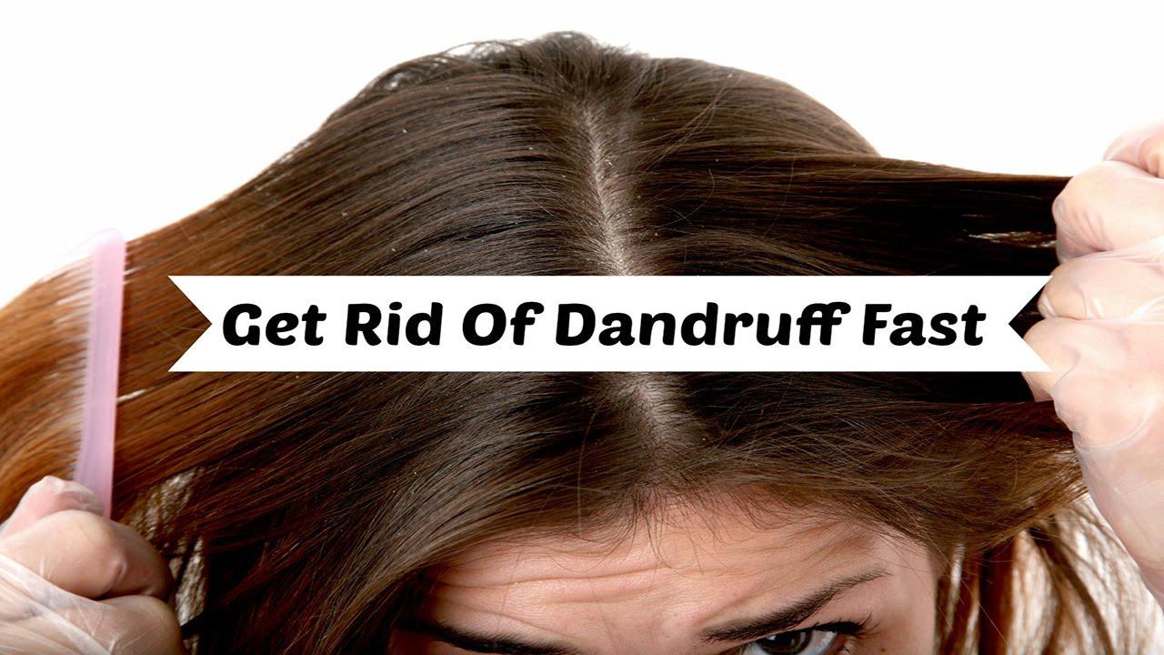 get rid of dandruff