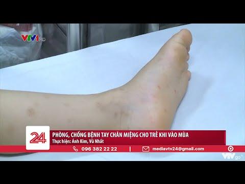 Phòng bệnh chân tay miệng cho trẻ khi vào hè   VTV24