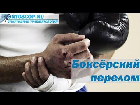 перелом кисти руки со смещением лечение