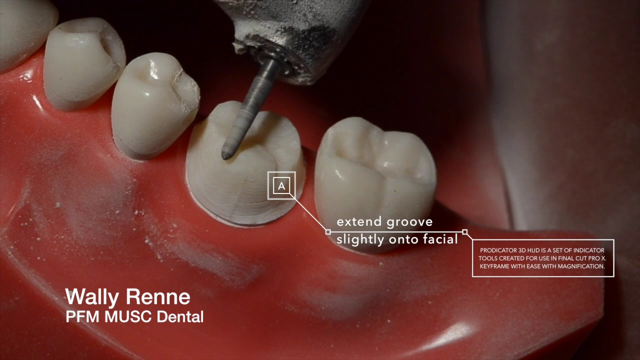 PFM Crown Prep And Animation For Dental Students