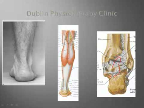 Ankle Sprain, Ankle Injuries Treatment-Dublin Sports Injuries Clinic