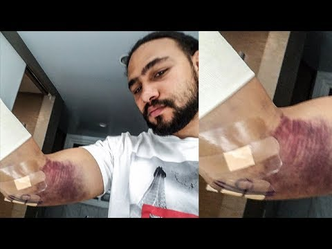 "KEITH THURMAN HAS ELBOW SURGERY; VOWS TO RETURN BEFORE YEAR'S END TO ""LAUNCH PUNCHES LIKE MISSILES"""